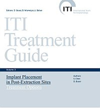 ITI Treatment Guide, Volume 3—Implant Placement in Post-Extraction Sites: Treatment Options