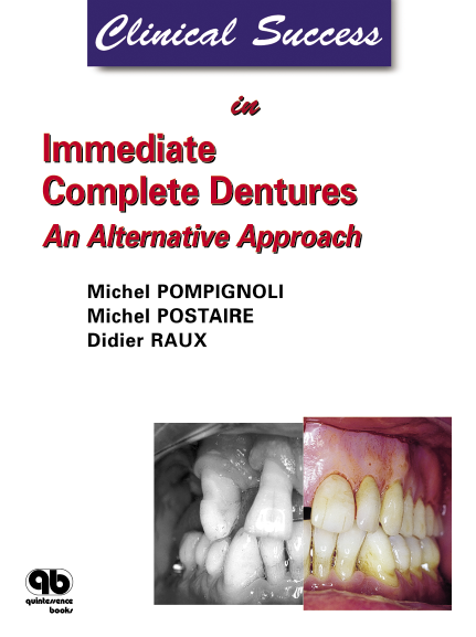 Clinical Succes in immediate complete dentures: an alternative approach