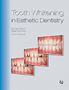 Tooth Whitening in Esthetic Dentistry