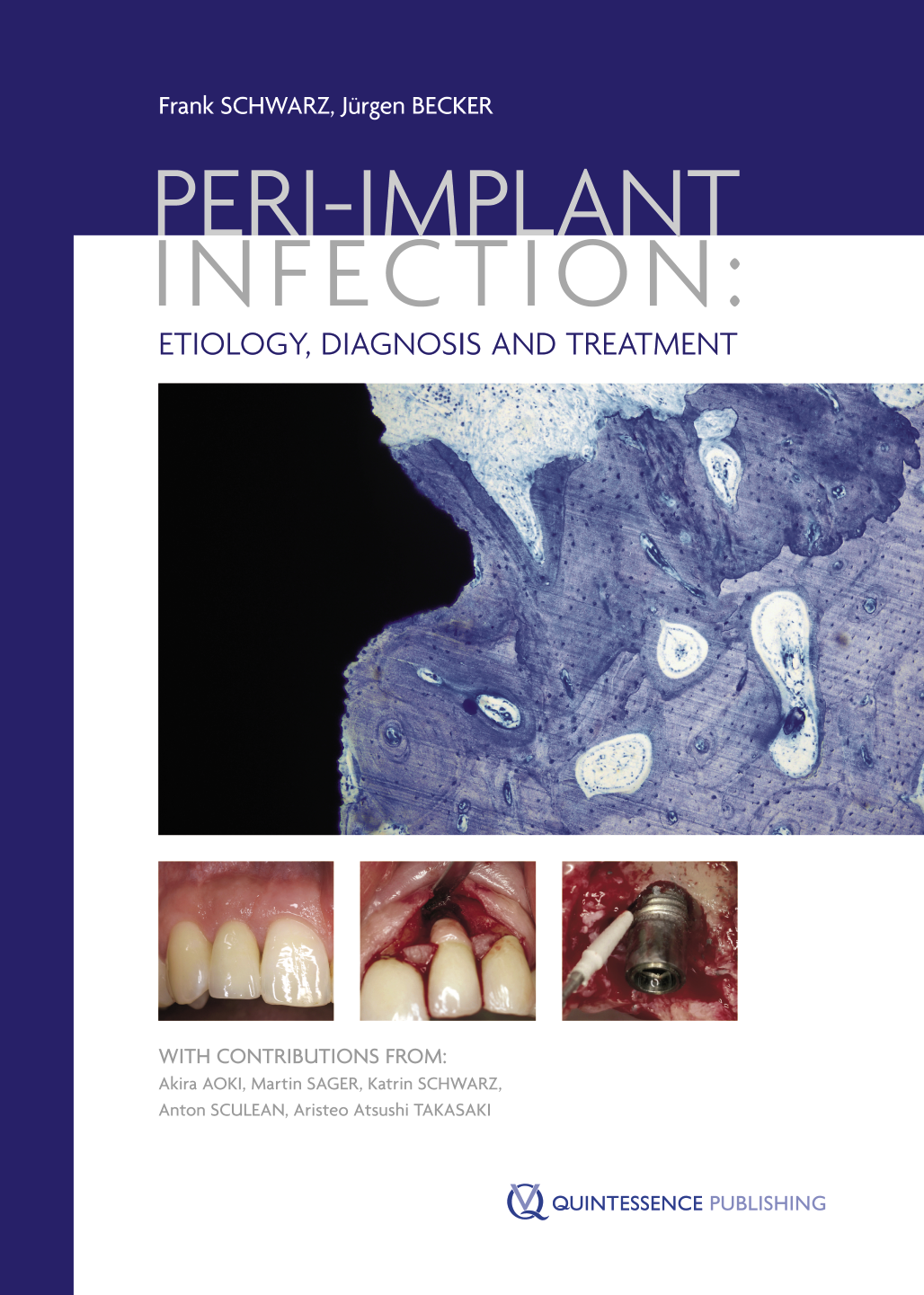 Peri-implant Infections
